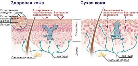 obezvozhennaya-kozha-skhema