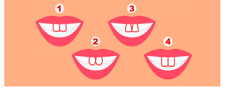 Тест: Узнайте о своем характере по форме зубов.