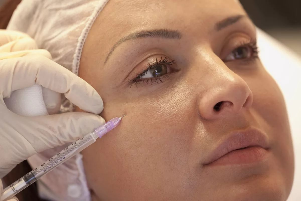 Мезотерапия для кожи вокруг глаз