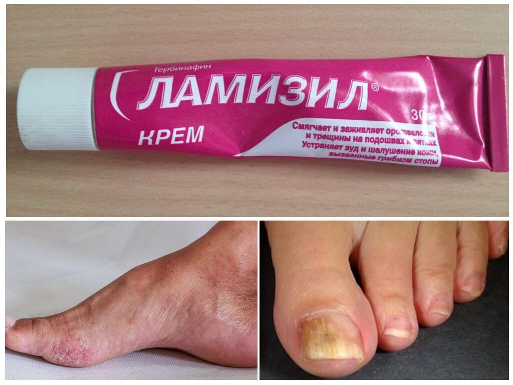 Мазь от грибка ногтей
