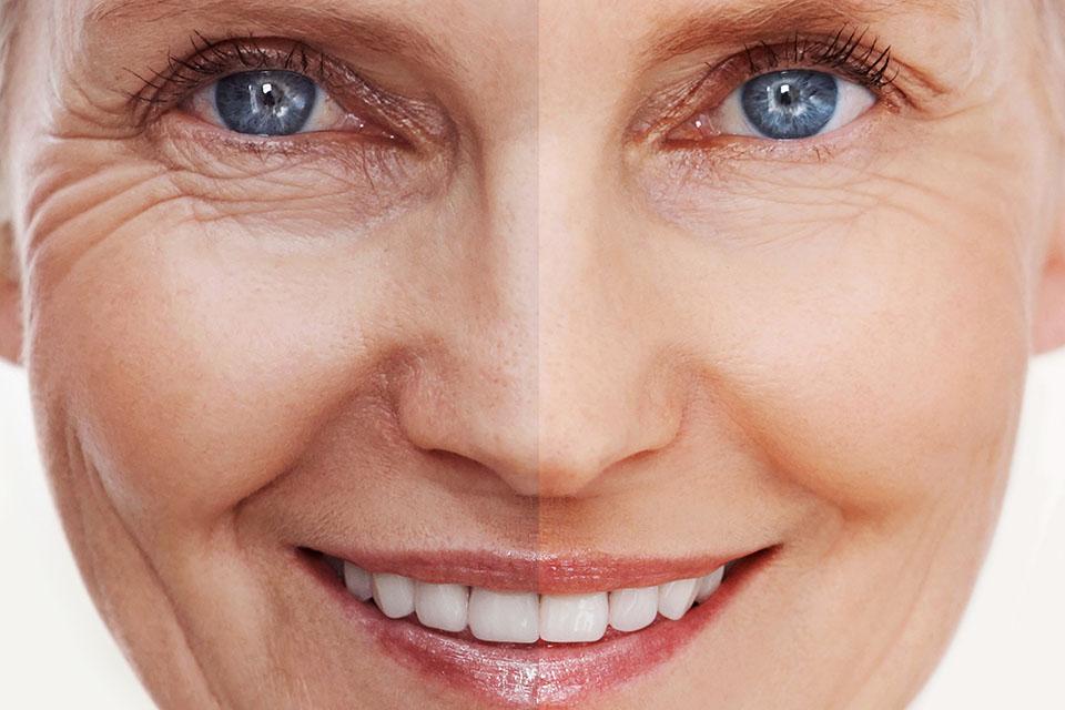 Эффективность мезотерапии кожи лица