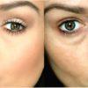 Как избавиться от малярных мешков под глазами, отзывы